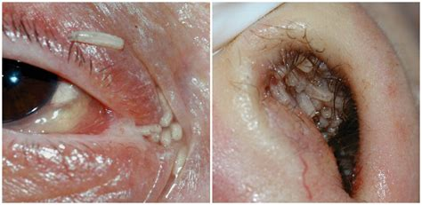 webcam co de caso 120 maggots removed from woman s nose and eye after fly