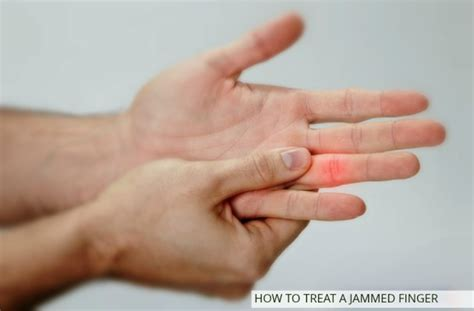 how to finger how to treat a jammed finger 24 hour home remedies