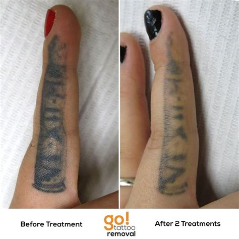 hand tattoo removal this inner finger had been touched up before