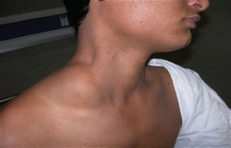 swelling left side of neck above collarbone what is the icd 10 code for lump in throat new style for