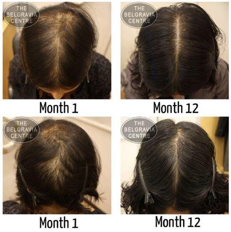 female pattern hair loss success stories women s hair loss treatment success stories