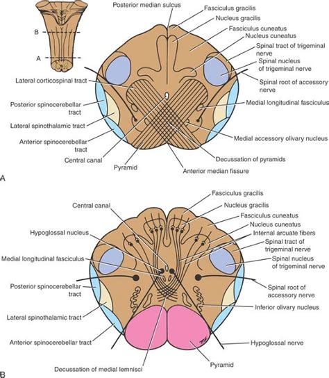 Transverse Section Of Medulla Oblongata by Ovid Clinical Neuroanatomy Ueu