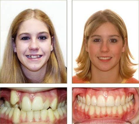 Smile Before Talk buck teeth braces before and after wallpaper
