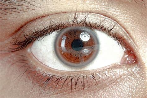 Lingkar Mata ini cara mata menunjukkan kondisi kesehatan tubuhmu net z