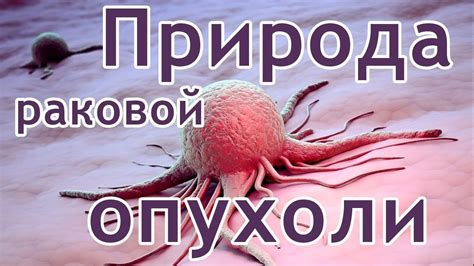 Фото раковой опухоли рака желудка