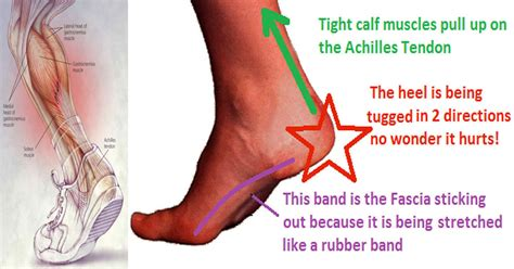 Planters Faceitis by This One Stretch Relieves Plantar Fasciitis Shin Splints