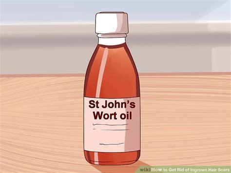 castor oil for removal of ingrown hairs castor oil for ingrown hair 3 ways to get rid of ingrown