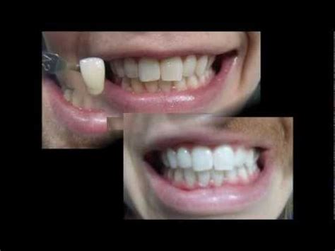 zoom teeth whitening reviews