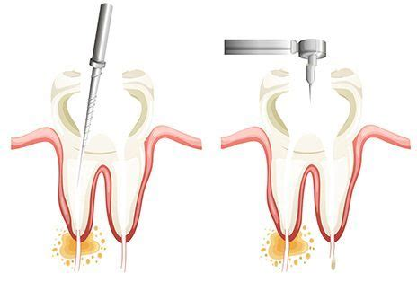 root canal diagram valley dental center dental services complete dental