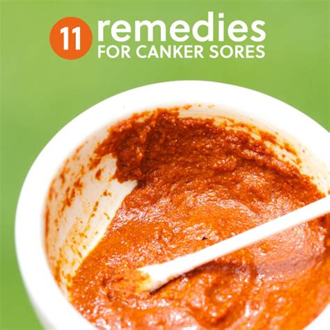 11 home remedies to get rid of canker sores herbs and
