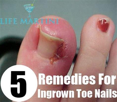 5 remedies for ingrown toenail ingrown toenail 1000 images about medical on pinterest foot odor