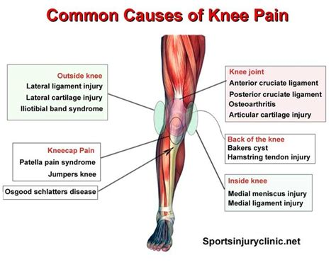 Knee L Aw 5 77 best images about info on knee knee ligaments and ankle fracture
