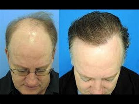 sulfur to grow hair bald spot how to grow thicker and longer hair on bald head using