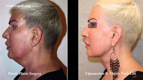 Double Chin Tuck Sew | 25 double chin liposuction and immediate implantation of