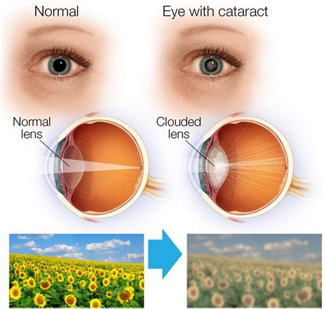 cataract treatment cataract treatment www pixshark images galleries with a bite