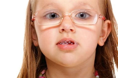 my is drooling 125 best images about motor myofunctional therapy on mouths