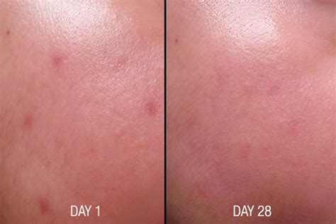 smooth e acne scar serum ขนาด 7 g vitamin24hr