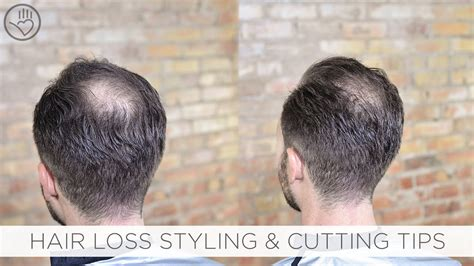 cut style balding  thinning hair youtube