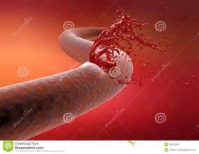 vein cut artery rupture bleeding blood stock illustration