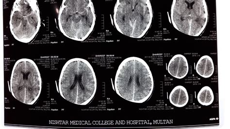 stay a brain bleed a in the balance a story books ct scan of subarachnoid hemorrhage ct scan sah