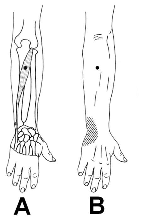 dolore al gomito parte interna epicondilite articolo sull epicondilite pagina 3