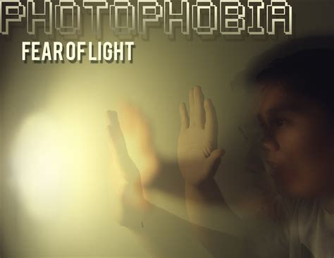 Sensitivity To Light by Photophobia Light Sensitivity