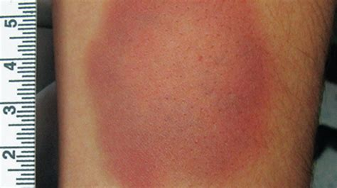 bruise colors contusion color images search