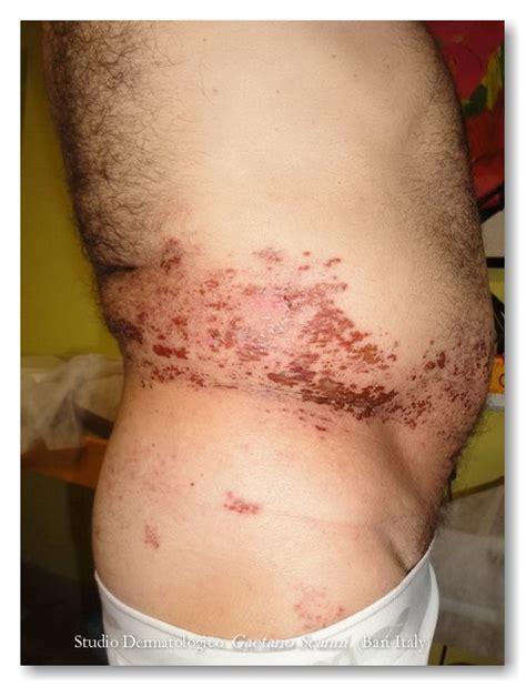 herpes zoster interno senza eruzione cutanea herpes zoster dr gaetano scanni
