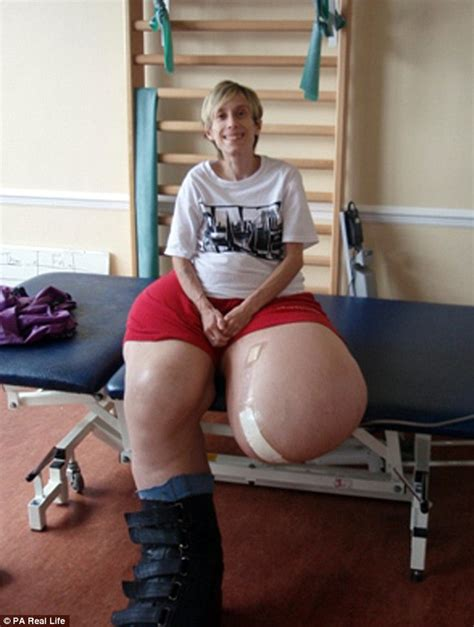 Marine Shower Heads by Woman Whose Legs Grew To 17 Stone After Being Born With A