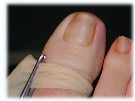 Toe Nail Care by Do You Toenails Markham Foot Specialist