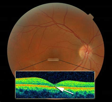 oct sectioning achromatopsia info reduced visual acuity