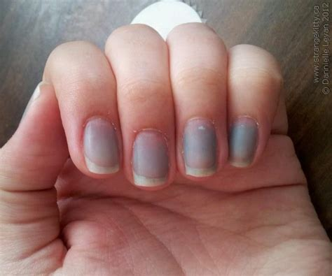 what your fingernails can tell you about your health