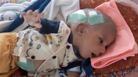 how pakistani make baby head pakistani baby with baseball size lump receives life