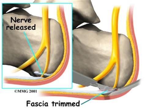 planters fasciitis surgery plantar fasciitis eorthopod