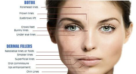 Where Your Wrinkle Filler Gets Injected Podcast by Wrinkles Are Not My Friend Synergy Aesthetics Wellness