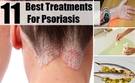 light treatment for scalp psoriasis best uvb ls for psoriasis images