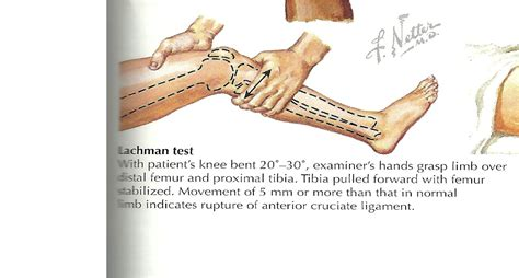 What Is The Anterior Drawer Test by Physical Diagnosis Ii Study Guide 2014 15 Instructor At Tufts School Of