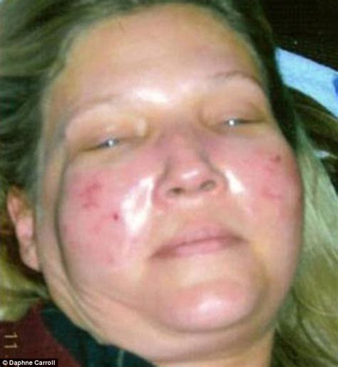 Has Disfigured Eyelids by The Shocking Story Of A Whose Was Disfigured
