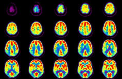 pet imaging brain aging cognitive health lab