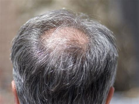 mens crown thinning brush back hair loss explained how and why men go bald the independent