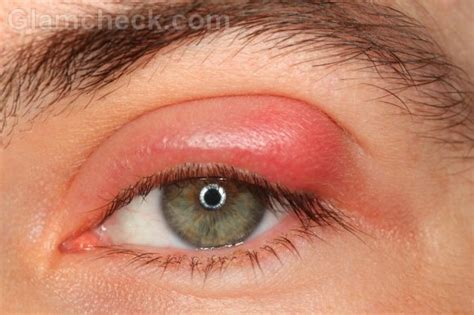 eye stye eye infections ocular infections