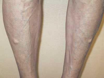 growth on s leg swollen lump like on leg after running runners forum