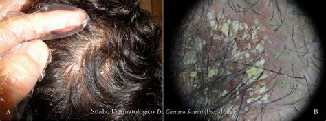 dermatite seborroica testa dermatite seborroica sebopsoriasi della testa dr
