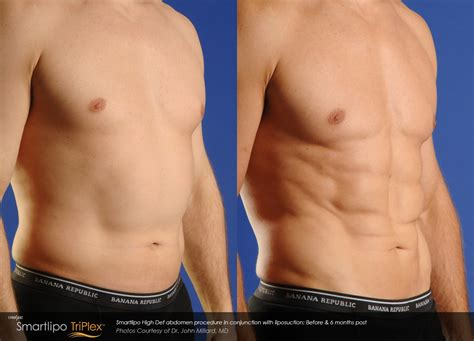 lipo after c section smartlipo laser liposuction body sculpting cascade