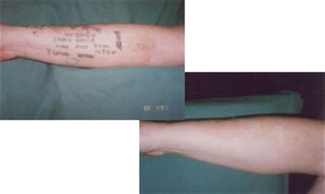 tattoo removal laser tattoo removal laserase croydon
