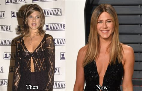 Did Aniston Get Implants by Aniston Plastic Surgery Before And After Photos