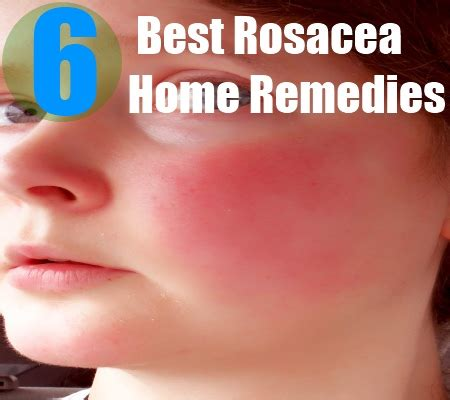 best treatment for acne rosacea top 5 best treatment rosacea related keywords top 5 best