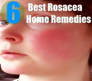 home remedies for rosacea 6 best rosacea home remedies treatments cure