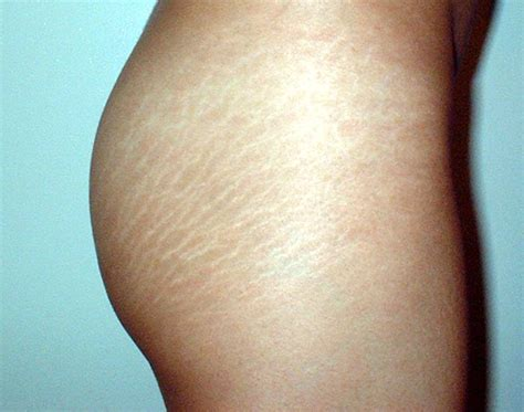 Miller Has Stretch Marks And Cellulite by Day 1 Something You About Yourself Hesitantly