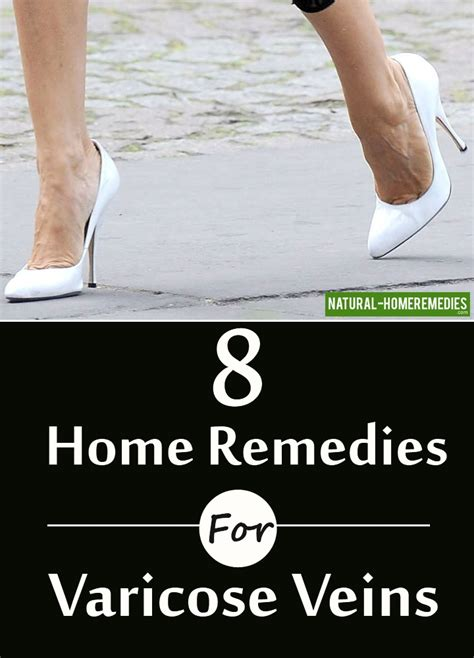 home remedies for varicose veins and spider veins